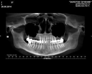 IVAS L.G. 37 _OPG_05_28_2014